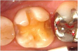 の が 取れ た 歯 詰め物