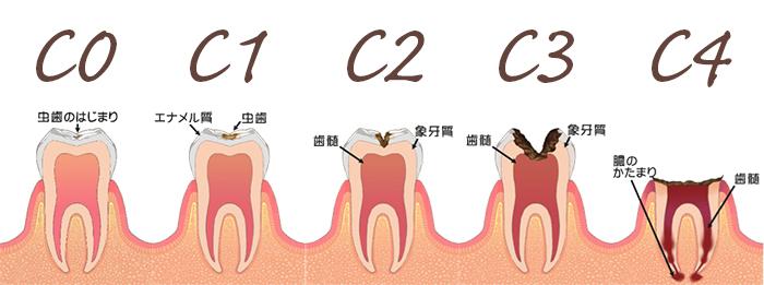 虫歯の五段階