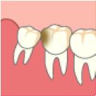 歯の一部から歯茎が出ている状態